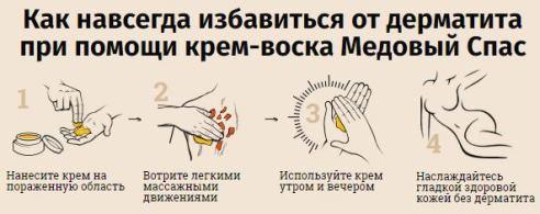 крем при атопическом дерматите у детей